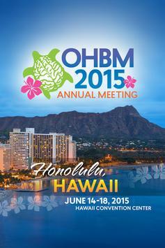 OHBM 2015 poster