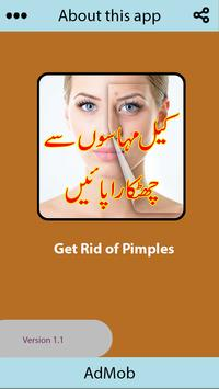 Get Rid of Pimples in a Week apk screenshot