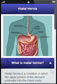 Hiatal Hernia Symptoms - Diet poster