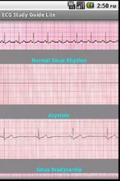ECG Study Guide Lite apk screenshot