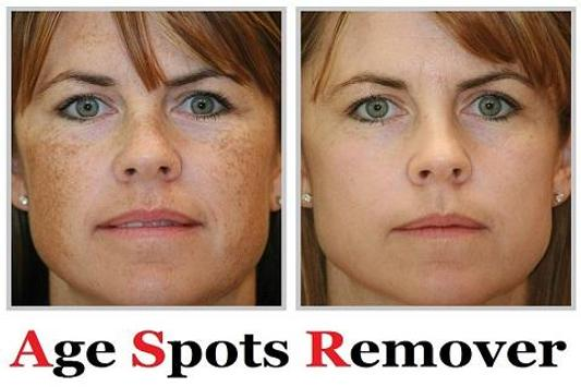 Age Spots Remover  Home Remedy poster