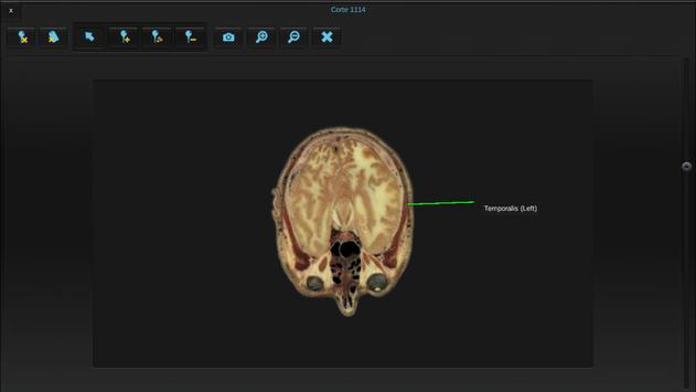 BioTK Head and Neck apk screenshot