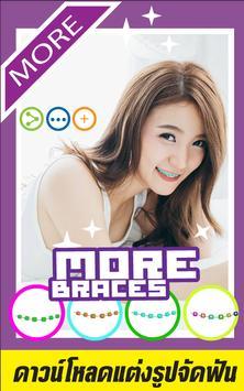 Selfie Braces Teeth Booth App poster