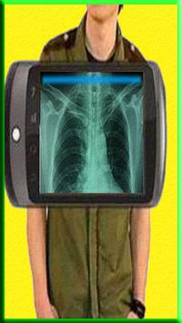 Body Scanner Free Prank screenshot 4