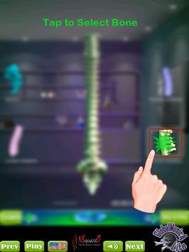 GM4L Spine Bone Game screenshot 9