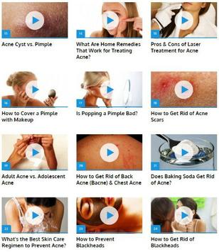 How to Get Rid of Acne apk screenshot