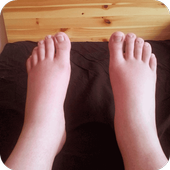 Swelling Feet Home Remedies icon