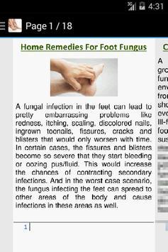 Foot Fungus Home Remedies screenshot 1