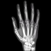 X-Ray Right Hand FREE icon