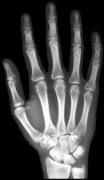 X-Ray Right Hand FREE poster