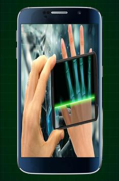 Xray Scanner Doctor screenshot 4