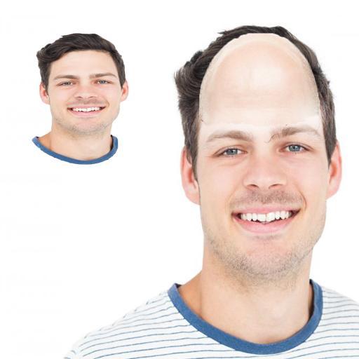 dating bald mod