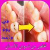 تخلص من تسوس الأسنان في يوم واحد simgesi