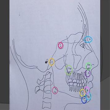 Cefalometria de Steiner poster