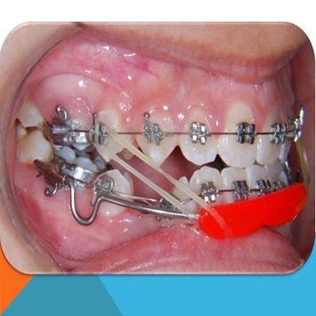 Progenie-Mandibular Ortodoncia poster