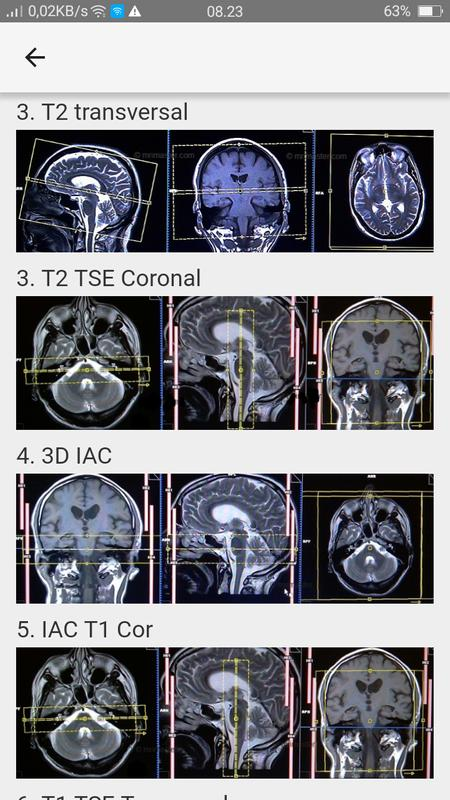MRI POSITIONING APK Download - Free Medical APP for Android ...