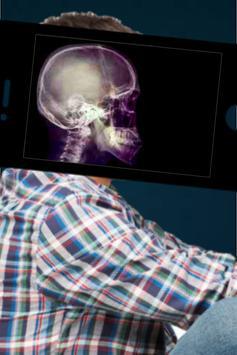 Xray Body scanner Simulator : Xray Prank poster