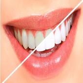 وصفات جديدة لتبييض الاسنان2016 icon