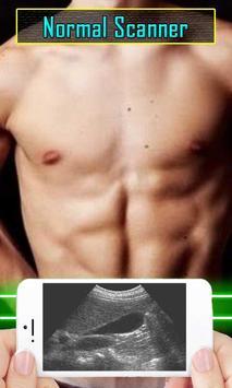 Ultrasound Scanner Test Prank apk screenshot