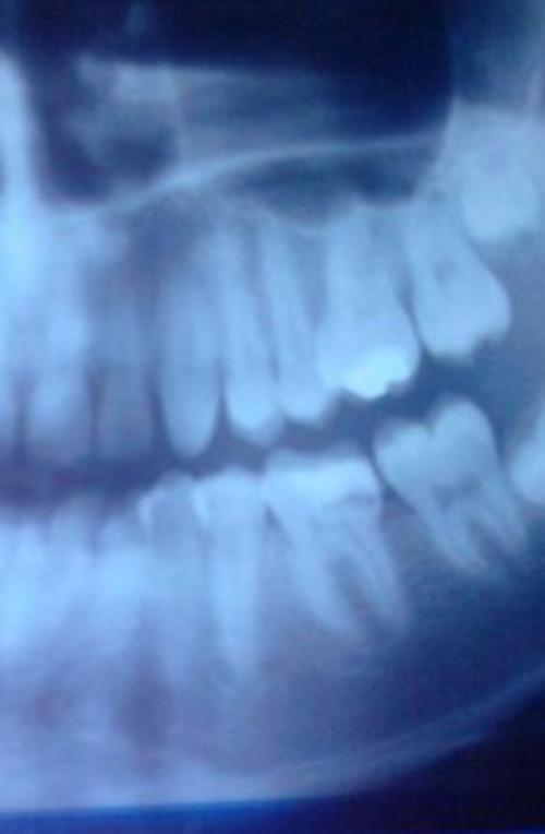 Dental X-Ray for Android - APK Download