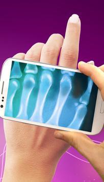 X-ray Scanner Prank screenshot 6