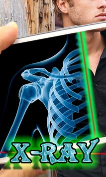 X-ray Scanner Prank poster