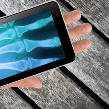 X-ray Joke apk screenshot
