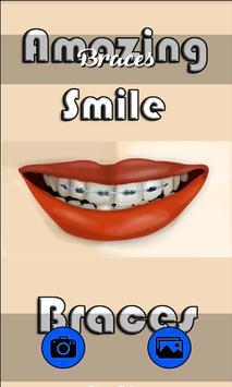 Amazing Smile Braces poster
