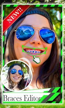 Add Braces To Your Teeth apk screenshot