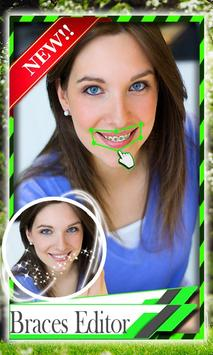 Add Braces To Your Teeth poster