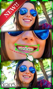 Braces Teeth Camera screenshot 5