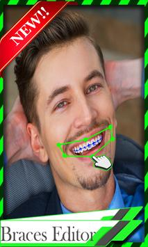 Braces Teeth Camera poster