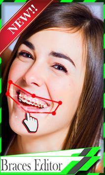 Braces Teeth Camera screenshot 2
