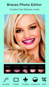 Braces Teeth Booth poster