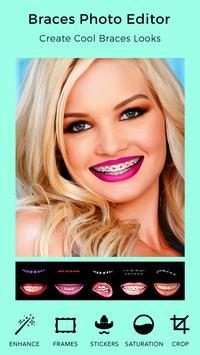 Braces Teeth Booth screenshot 6