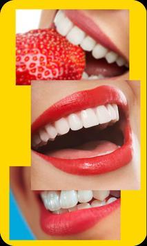 طرق تبييض الأسنان screenshot 3