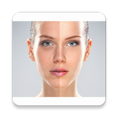 Acne Remover Photo Editor icon