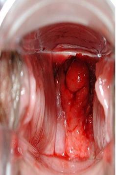 Fast growing vaginal tumor