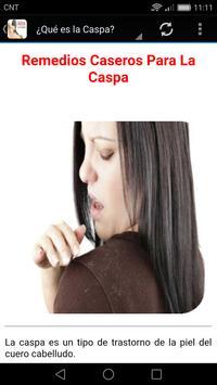 Remedios caseros para la Caspa poster