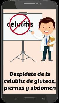 Celulitis Nunca Mas poster