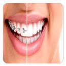 Orthodontic APK
