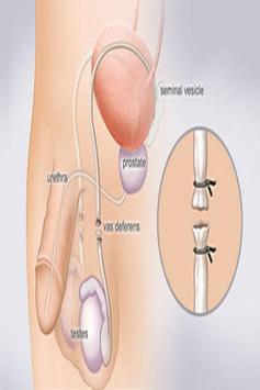 Vasectomy screenshot 2