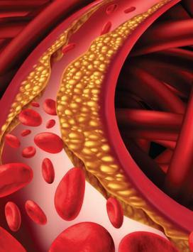 High Cholesterol screenshot 1
