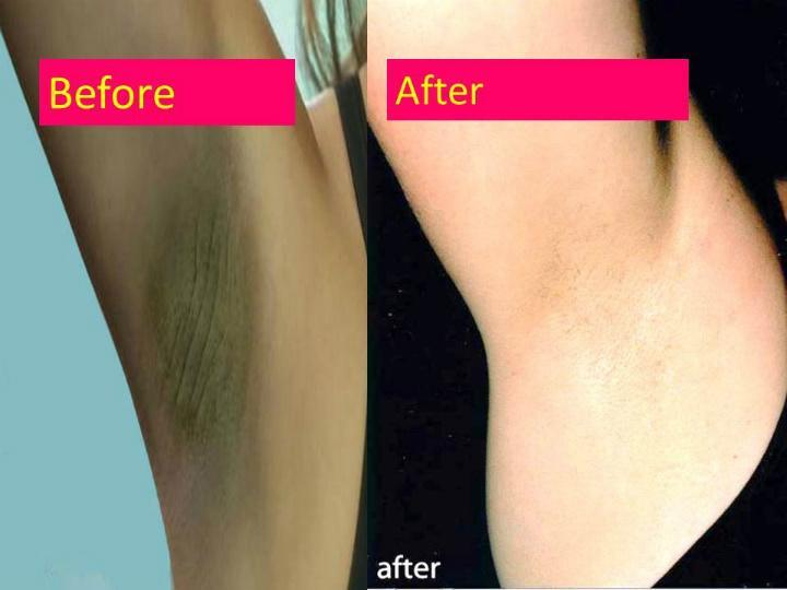 Tips To Get Rid Of Dark Armpits Naturally For Android Apk Download