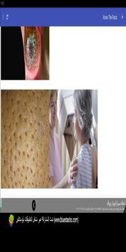 Best Ways To Prevent Breast Cancer apk screenshot