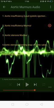 Cardiology Mnemonics, ECG, Heart Sounds & Murmurs screenshot 5