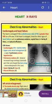 All Breath Sounds & X-Rays screenshot 2