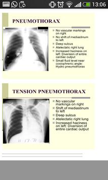 Pulmonology Mnemonics screenshot 7