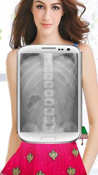 XRay HD Body Scanner (Prank) screenshot 3