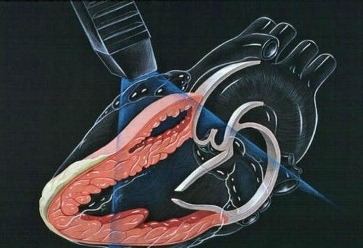 Mobile Heart Ultrasounds poster